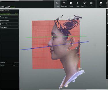デジタル3D技術を用いた精密治療