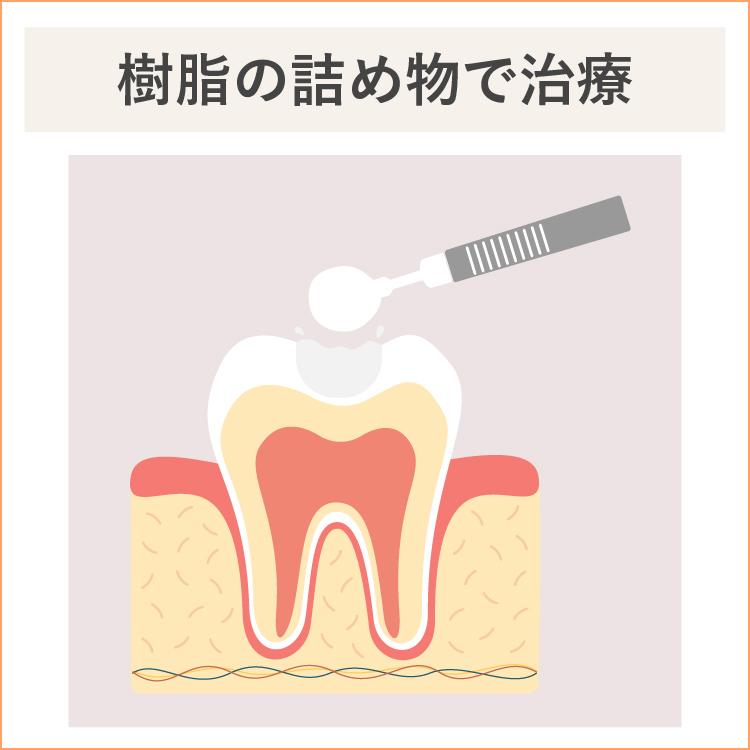 初期虫歯、樹脂で治療