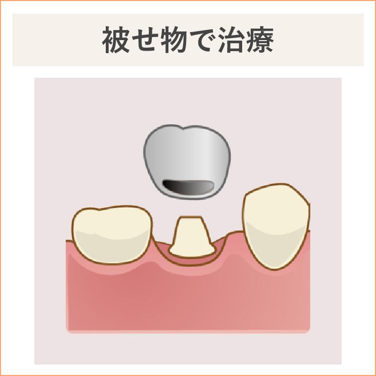 重度の虫歯、被せ物で治療