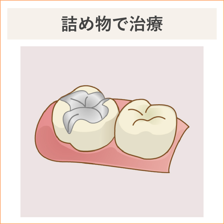 中度の虫歯、詰め物で治療