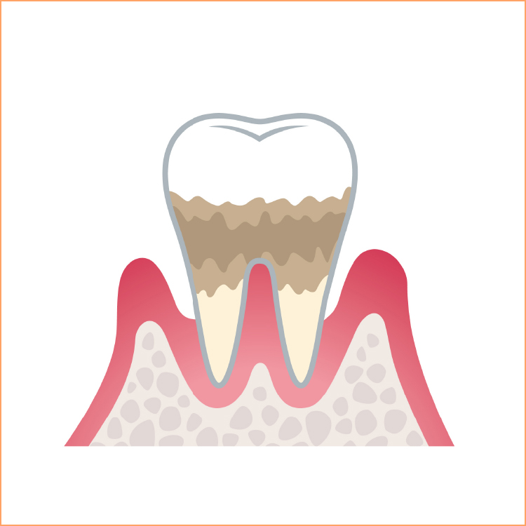 中度の歯周病